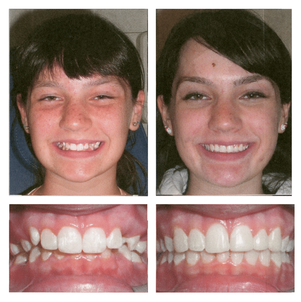 Before and After Gorkowitz Orthodontics Livingston Hasbrouck Heights NJ